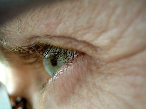 Arrugas predicen riesgo de fracturas