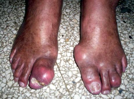 Kavinton y midokalm de la osteocondrosis