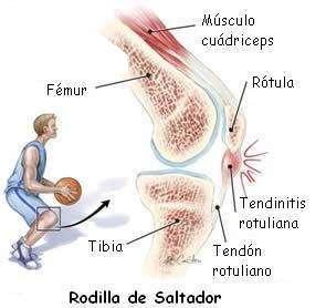 tendinitis patelar o rodilla del saltador