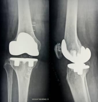 reemplazo total de rodilla